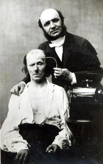 Duchenne de Boulogne with a `victim patient` von Bridgeman Art