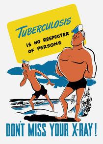 890-429-tuberculosis-ww2-xray-poster