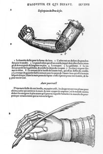 Description of a mechanical iron arm and hand by French School
