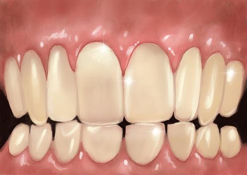 Teeth-xl
