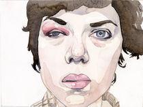 Black Eye by Meredith Lynn