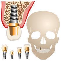 Dental Implant by Radu Bajan