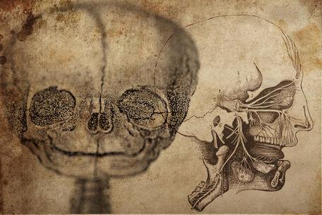 Fetus-ghoul2
