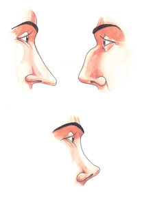 Body parts: noses von William Rossin