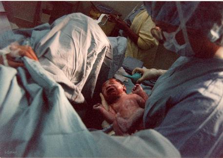 A18-birth