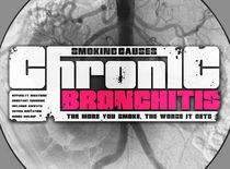 Chronic bronchitis by Stuart Croft