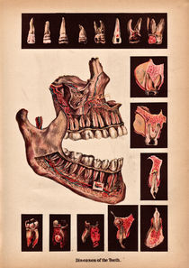 Diseases of the teeth by Mark Strozier