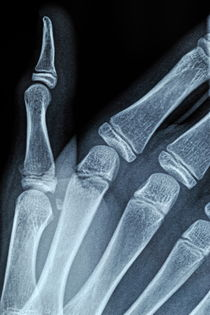 X-ray image of boy's hand by Sami Sarkis Photography