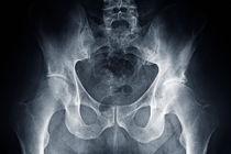 Hip X-ray von Sami Sarkis Photography