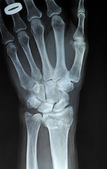X-ray imagery of a hand with wedding ring von Sami Sarkis Photography