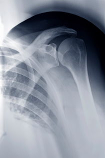 Shoulder X-ray by Sami Sarkis Photography
