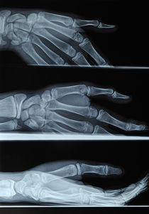 Hand X-ray von Sami Sarkis Photography