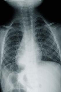 Boy's torso X-ray von Sami Sarkis Photography