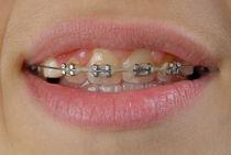 Orthodontic braces on teeth by Sami Sarkis Photography