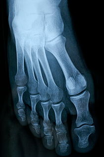 X-ray image of mature man's feet by Sami Sarkis Photography