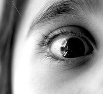 black eye von emanuele molinari